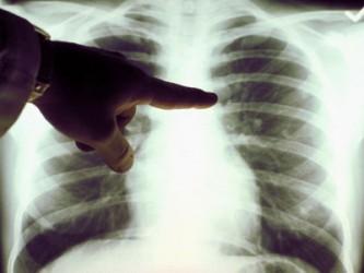 Afecţiunile aparatului respirator – principala cauză de deces a bolnavilor sălăjeni